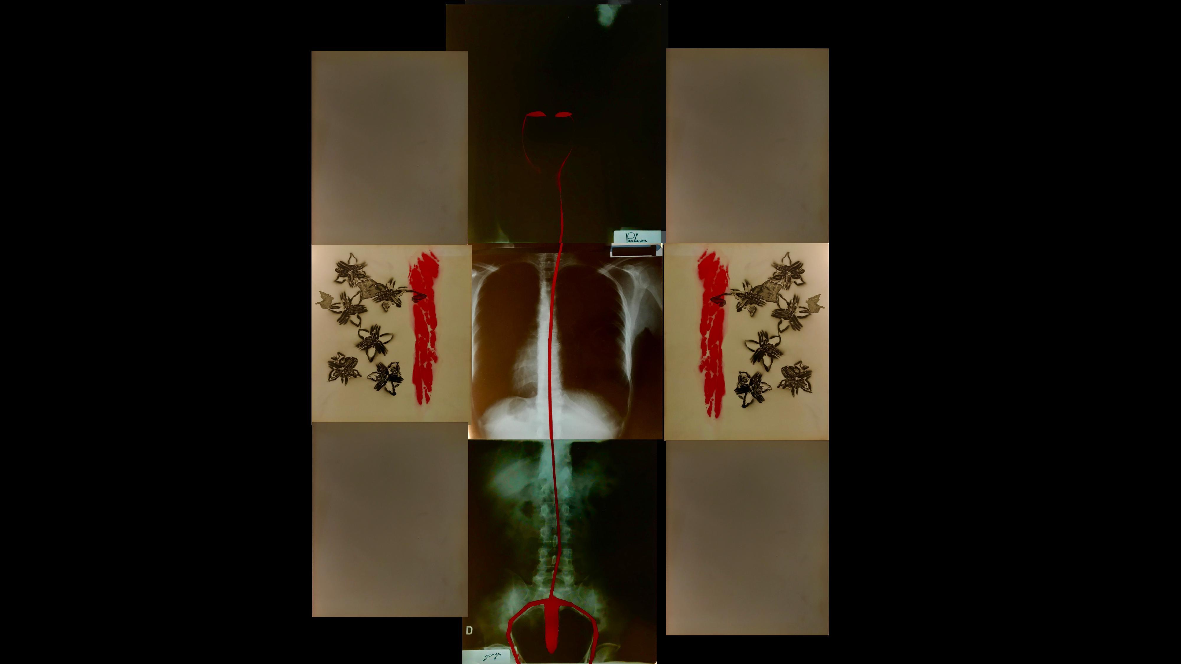 nella doto si vede un'opera d'arte con, al centro, un rigo di sangue su una radiografia del corpo umano. A destra e a sinistra due schizzi rossi e alcuni insetti verdi.